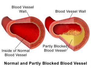 Arterial plaque image
