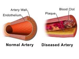 What is CHD disease blocked arteries image