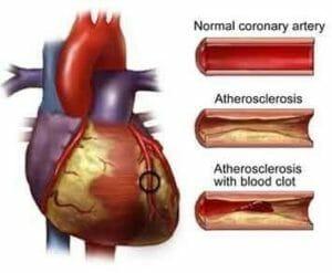 Coronary artery what is CHD d6