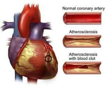 Natural heart health supplements
