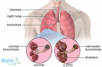 Best treatments COPD