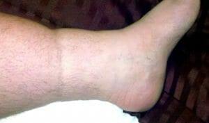 Swollen ankle