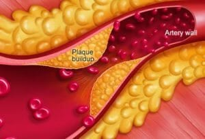 What causes inflammation in the arteries