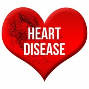 Heart disease image