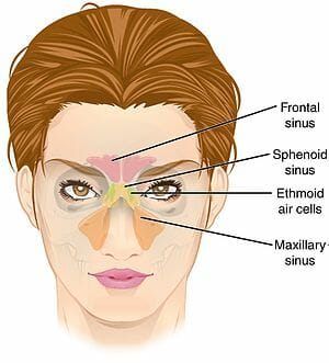 Sinusitis image