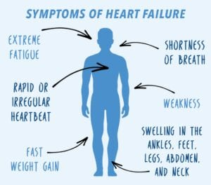 What I'd co q 10 for heart failure
