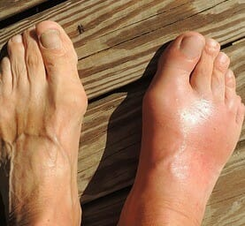 pain relief for gout