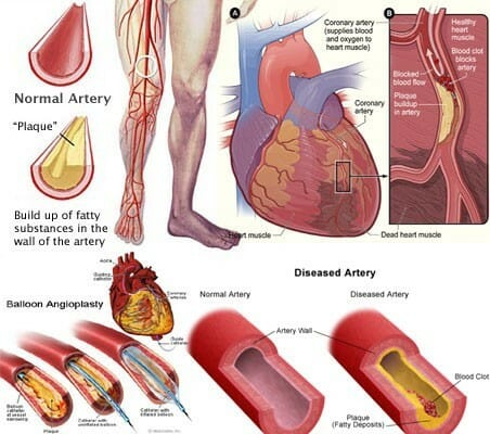 Symptoms of blocked arteries