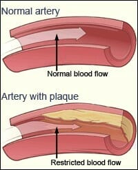 Blood vessel plaque removal