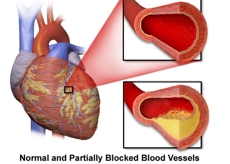 Can arteries be unclogged?