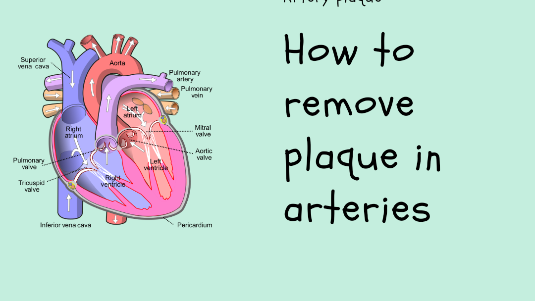 How to remove plaque in arteries