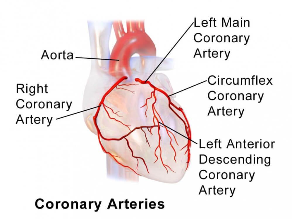 LAD left anterior descending artery