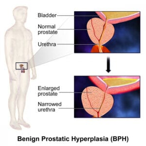 BPE benign prostatic enlargement